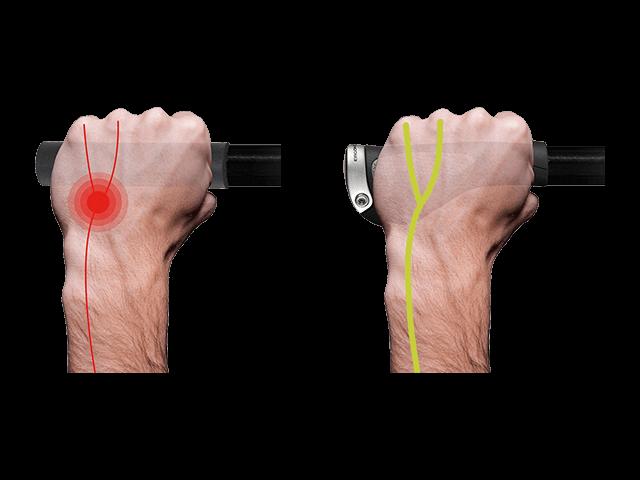 Durch starke punktuelle Belastung wird der Ulnarnerv abgeklemmt. Der Flügel schützt den Ulnarnerv und beugt somit Taubheitsgefühlen in den Fingern vor.
