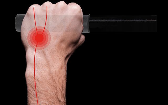 Stark belastete Nervenbahnen sind auf einer Hand schematisch in rot hervorgehoben.