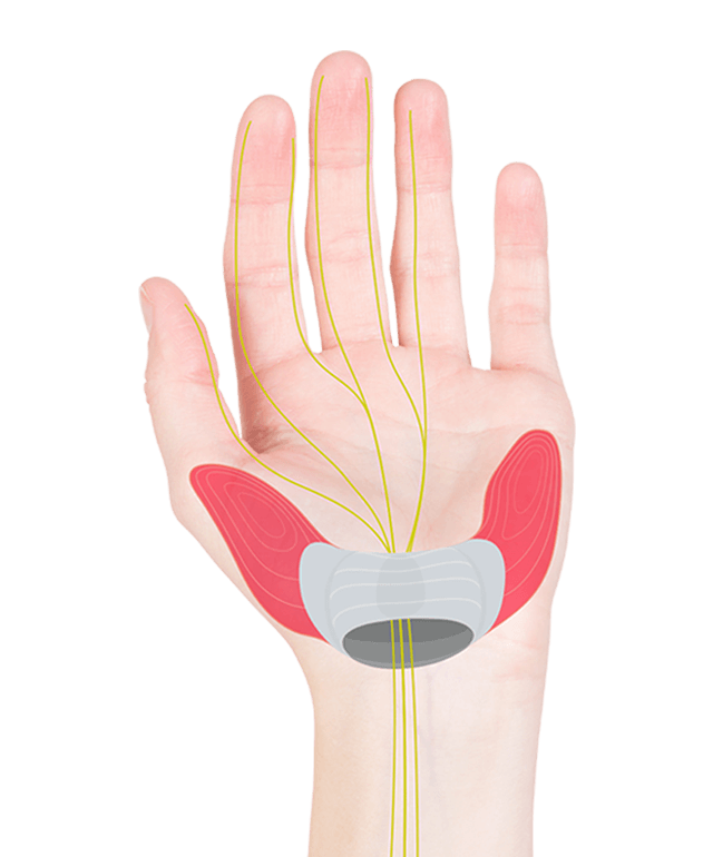Illustration showing where the carpal tunnel and important nerve pathways are in a hand.